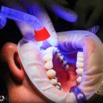 Złe postępowanie żywienia się to większe niedostatki w jamie ustnej natomiast również ich utratę